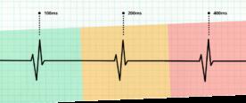 Illustration representing Core Web Vitals KPIs